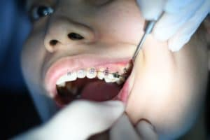 dents machoire et chiropracteurs