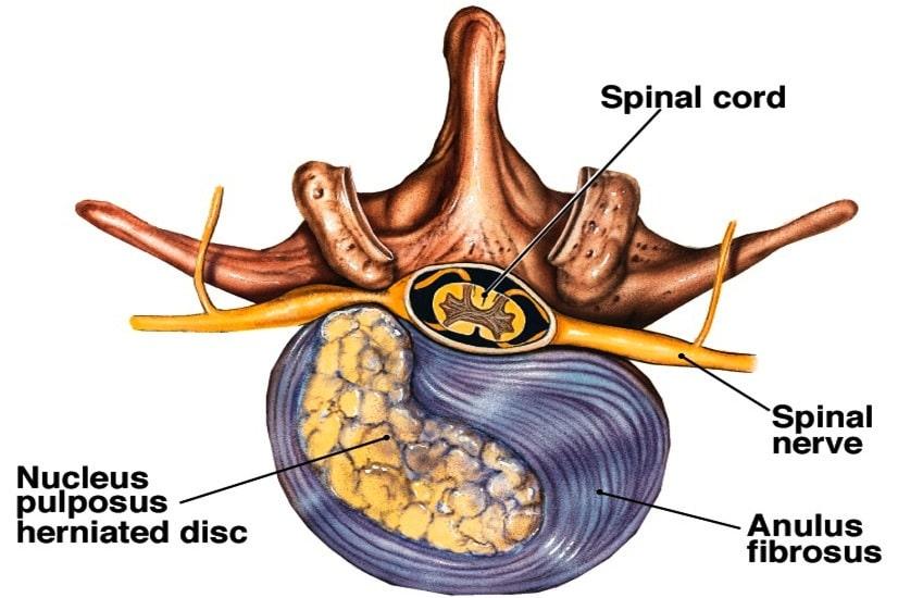 On voit nettement ici une hernie discale LATTERALE créant une pression sur le nerf sortant. Un disc médian aurait, lui un impact sur la moelle épinière..