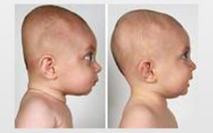 plagiocéphalie et chiropraxie